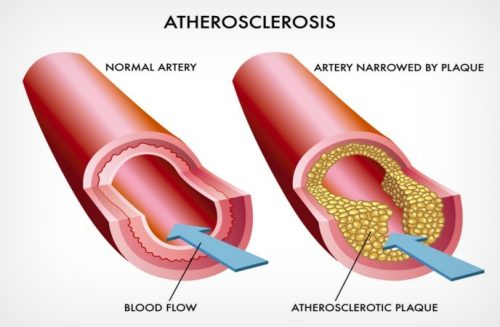 cardiovascular disease treatment in Opelousas LA - clogged artery caused by atherosclerosis