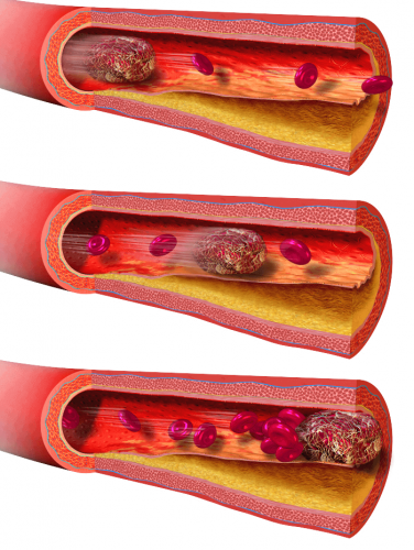 atherosclerosis diagnosis and treatment in Opelousas LA