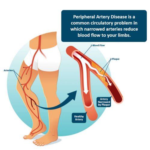 PAD - Peripheral Artery Disease diagnosis and treatment in Opelousas, LA