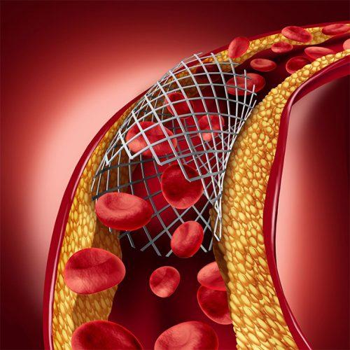 Opelousas LA minimally invasive endovascular treatment for peripheral vascular disease and PAD